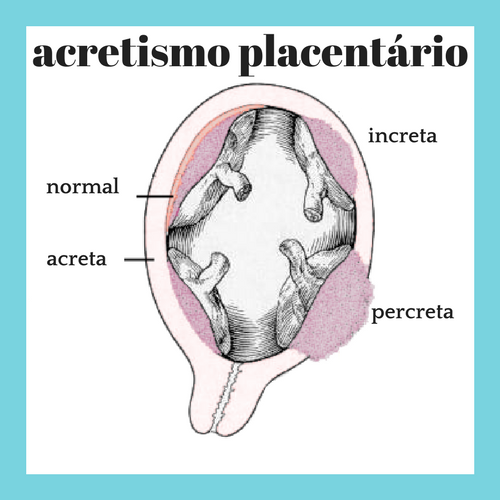 placenta-acreta-percreta-increta