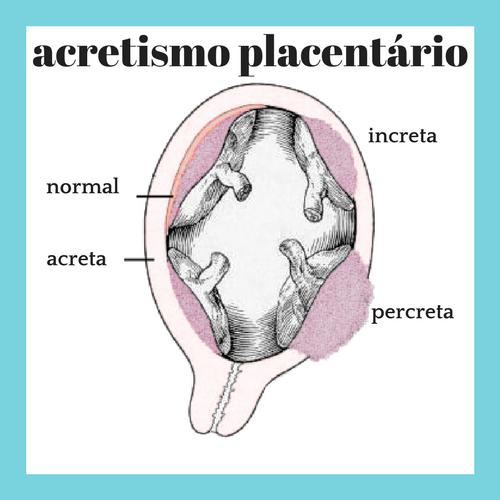 placenta-acreta-percreta-increta