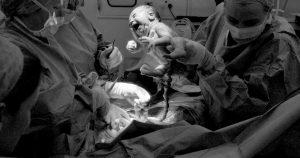cordao umbilical