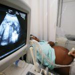 Veja aqui os exames na gravidez que são necessários