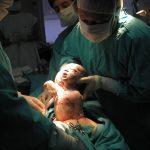 Parto Humanizado não é via de Parto. Não agende sua cesárea.