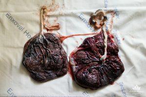 placenta pós parto