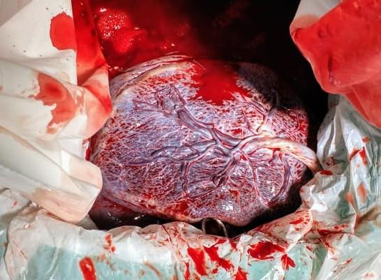 placenta- dequitação - pós parto imediato - tempo do parto