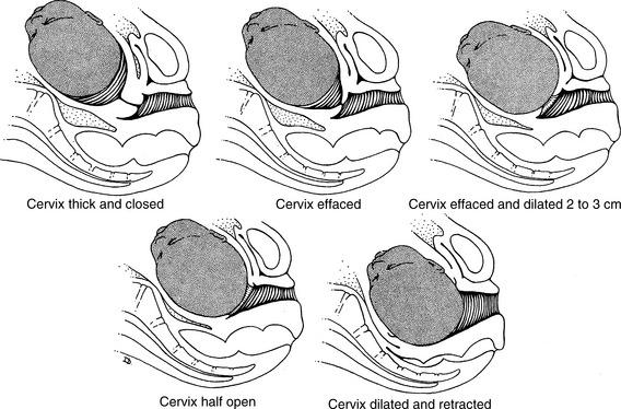 colo do útero e dilatação