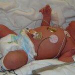 Bebê de UTI - quando o inesperado acontece