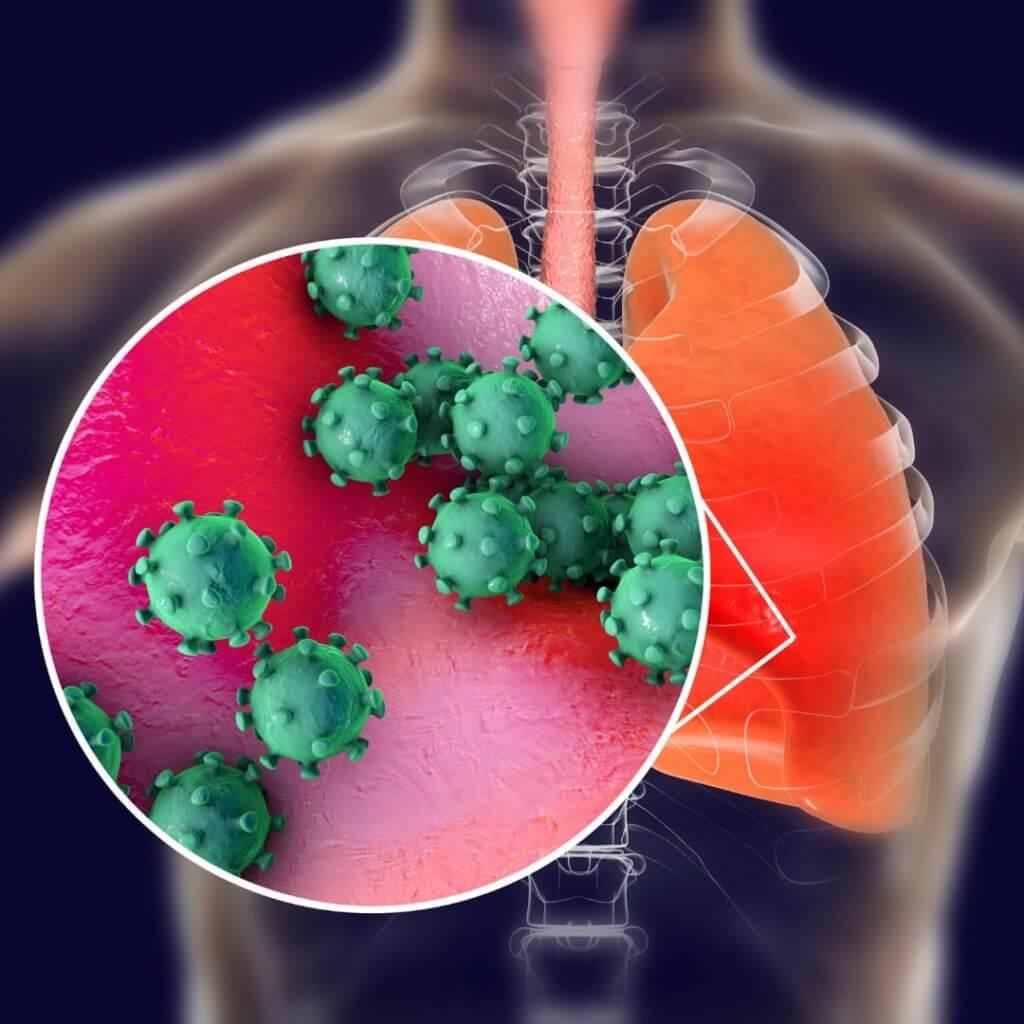 A Síndrome Respiratóia Aguda Grave pode ser causada por coronavírus. Foto: biblioteca Canva